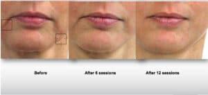 LPG Behandlung für Gesicht by Endermolift